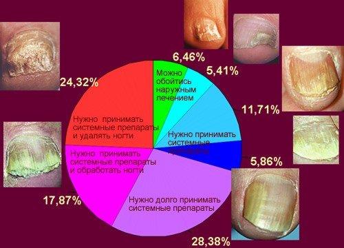 На этом рисунке отражены современные реалии лечения онихомикоза.  Проценты показывают, какие (приблизительно...